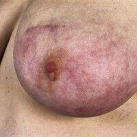 Akrozyanose. Diffuse, nur bei Kälte auftretende, rötlich-livide Hautverfärbung beider Mammae mit ...