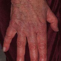 Akrozyanose bei Rechtherzinsuffizienz in altersatrophischer, glänzender Haut mit solaren Lentigin...