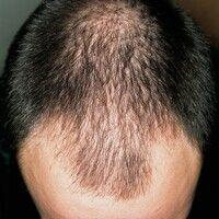 Alopecia androgenetica beim Mann. Stadium II/III: Zurücktreten der Stirn-Haar-Grenzen, insbes. an...
