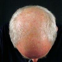 Alopecia androgenetica beim Mann. Stadium IV: Hufeisenförmige, komplette Lichtung der Haare im Pa...