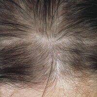 Alopecia androgenetica bei der Frau. Deutliche Haarlichtung im Scheitelbereich bei einer 28-jähri...