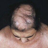 Alopecia androgenetica bei der Frau. Übersichtsaufnahme: Stadium III: Ausgeprägte Haarlichtung im...