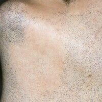 Alopecia areata: Scharf begrenztes, rundliches, haarloses Areal im Bartbereich.