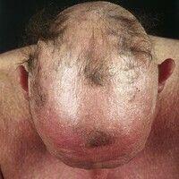 Alopezie, vernarbende. Seit 2 Jahren rasch fortschreitender, sehr ausgedehnter, diffuser, vernarb...