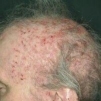 Alopezie, vernarbende. Dynamisch verlaufende, zunehmende entzündliche, vernarbende Haarlosigkeit ...