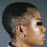 Alopecia marginalis. Haarausdünnung und fokale Haarlosigkeit durch ständigen, Frisur-bedingten Zu...