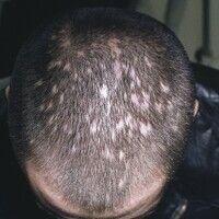Alopecia parvimaculata. Multiple, fleckig-narbige Alopezieherde bei einem 33-jährigen Mann. Die H...
