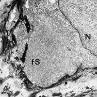 Amyloidose, kutane. Elektronenmikroskopie: Detailvergrößerung der feinfibrillären Substanz. N = N...