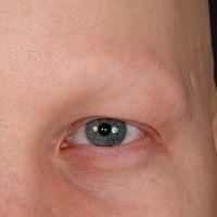 Alopecia areata: Kompletter Verlust von Augenbrauen und Wimpern.
