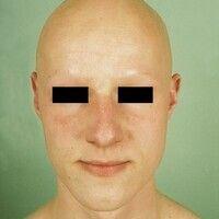 Alopecia areata universalis. Verlust der Kopf- und Barthaare, der Augenbrauen und Wimpern.