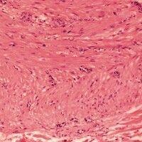 Angioleiomyom. Quer und längs geschnittene Stränge glatter Muskulatur. Zahlreiche quer und schräg...
