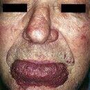 Angiodysplasie. Seit Geburt bestehender Naevus flammeus. Seit etwa 10 Jahren, schmerzlose, perman...