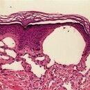 Angiokeratom. Weitgestellte, lakunenartige Papillarkörpergefäße; diskrete Akanthose, leichte Hype...
