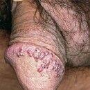 Angiokeratoma der Glans penis. Multiple, chronisch stationäre, 0,2-0,4 cm große, blaurote bis brä...