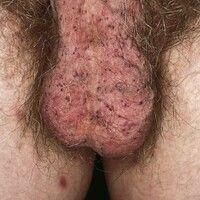 Angiokeratoma scroti et vulvae. Bei dem 39-jährigen Mann bestehen chronisch stationäre, multiple,...