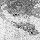 Apoptose. Elektronenmikroskopie: Durch die dermoepidermale Basalmembran (BM) ausgeschleuster, apo...