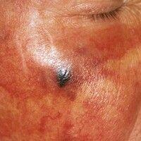 Angiosarkom der Kopf- und Gesichtshaut. Seit mehreren Jahren (!) zunehmende, bisher vollständig s...