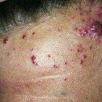 Angiosarkom der Kopf- und Gesichtshaut. Langsamer, chronischer Verlauf ohne subjektive Beschwerde...