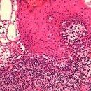 Aphthen. Ausschnitt aus Voraufnahme. Randbereich der Blase. Dichtes, überwiegend lymphozytäres In...
