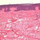 Aplasia cutis congenita. Detailvergrößerung: Weitgehend normal strukturiertes Oberflächenepithel,...