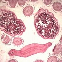 Askaridiasis. Ascaris lumbricoides, Taenia spp. und Fasciola hepatica im histologischen Schnitt. ...