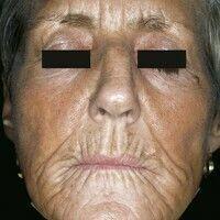 Atrophie. 63 Jahre alte Patientin mit bekannter Porphyria cutanea tarda. Gleichmäßig gebräunte Ge...