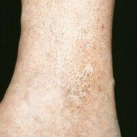 Atrophie blanche. Rundliche weiße narbige Bezirke in einer schmutzigbraunen Hyperpigmentierung im...