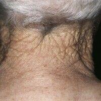 Atrophie: Schlaffe Atrophie (Cutis rhomboidalis nuchae) bei einem 82 Jahre alten Landwirt. Solare...