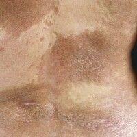 Atrophodermia idiopathica et progressiva. Sich langsam über Monate ausdehnende, großflächige, ery...
