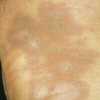 Atrophodermia idiopathica et progressiva. Konfluierende bräunliche Herde mit zentral weißlich skl...