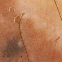 Auflichtmikroskopie. Bowenoide Papulose. Gefäßektasien, fokal perivasale Melanophagen.