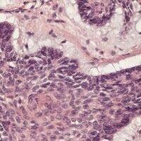 Basalzellkarzinom. Detailvergrößerung: Nodulärer, solider Zellkomplex mit eng aneinander liegende...