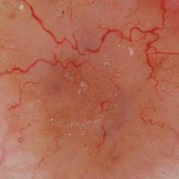 Basalzellkarzinom knotiges:bizarre Tumorgefäße in der Auflichtmikroskopie.