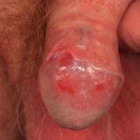 Balanitis simplex, seit mehreren Jahren bestehende, chronisch rezidivierende Balanitis ungeklärte...