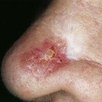Basalzellkarzinom, sklerodermiformes. Bei der 82-jährigen Patientin besteht eine ca. 1 x 1 cm mes...