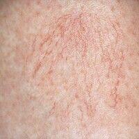 Besenreiser. Kleinkalibrige, radiär verlaufende, durch die Haut durchschimmernde Gefäße im Bereic...