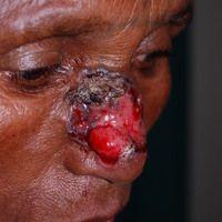 Baslzellkarzinom ulzeriertes:großflächiges, seit Jahren unbehandeltesknotiges, nicht schmerzend...