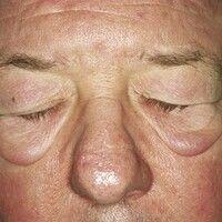 Blepharochalasis: bei dem 66-jährigen Patient bestehen seit einigen Jahren chronische Schwellunge...
