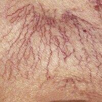 Besenreiser. Lineare und netzförmige Gefäßektasien bei einem 65-jährigen Patienten mit chronische...