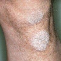 Betknie. Umschriebene Hyperkeratose im Bereich des Knies.