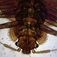 Bettwanze. Bettwanze Cimex lectularius: Ventralansicht des Kopfes. Von unten nach oben: Antennen,...