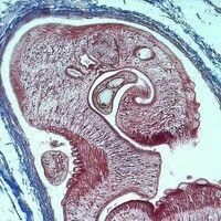 Bilharziose. Schistosoma haematobium in der Harnblase. Vergrößerter Querschnitt eines adulten Pär...
