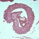 Bilharziose. Querschnitt eines Schistosoma mansoni-Pärchens. Das große Männchen umschließt im Can...