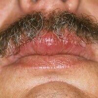 Cheilitis granulomatosa. Umschriebene, permanente Schwellung der Oberlippe.