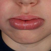 Cheilitis granulomatosa als monosymptomatische Variante desMelkersson-Rosenthal-Syndroms. Zentra...