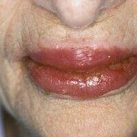 Cheilitis plasmacellularis. Lackartig glänzende Lippen mit multiplen Ulzerationen im Bereich der ...