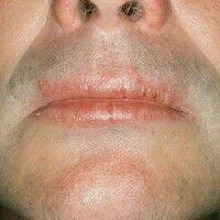 Cheilitis simplex. Radiäre Rhagaden auf insgesamt trockenen Lippen. Bei einer nachgewiesenen atop...