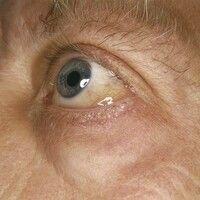Chemosis. Ödem der Bulbusbindehaut bei einem Pollenallergiker.