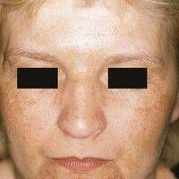 Chloasma. Multiple, unscharf begrenzte, teils retikuläre, teils flächige Hyperpigmentierungen bei...