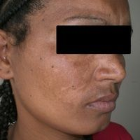 Chloasma/Melasmabei einer27-jährigen äthiopischen Patientin nach längererEinnahme von oralen A...